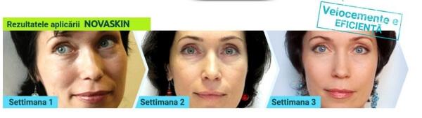 femeie anti îmbătrânire riduri